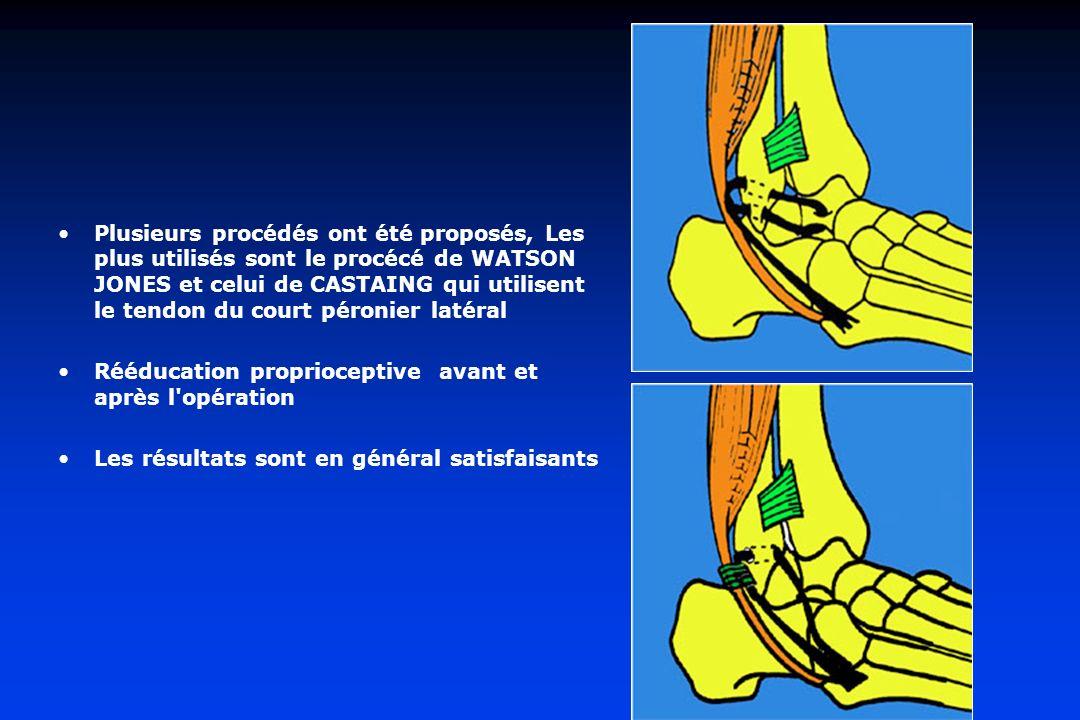 Plusieurs procédés ont été proposés, Les plus utilisés sont le procécé de WATSON JONES et celui de CASTAING qui utilisent le tendon du court péronier latéral Rééducation proprioceptive avant et après l opération Les résultats sont en général satisfaisants