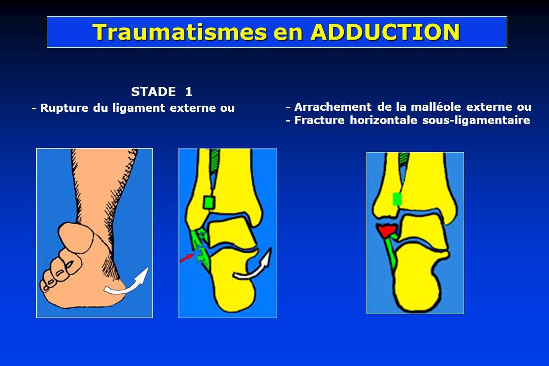 Traumatismes en ADDUCTION STADE 1 - Rupture du ligament externe ou - Arrachement de la malléole externe ou - Fracture horizontale sous-ligamentaire