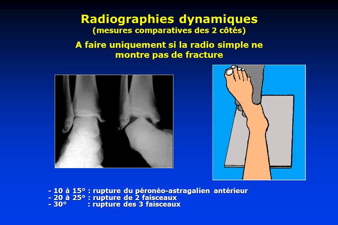 Radiographies dynamiques (mesures comparatives des 2 côtés) A faire uniquement si la radio simple ne montre pas de fracture - 10 à 15° : rupture du péronéo-astragalien antérieur - 20 à 25° : rupture de 2 faisceaux - 30° : rupture des 3 faisceaux