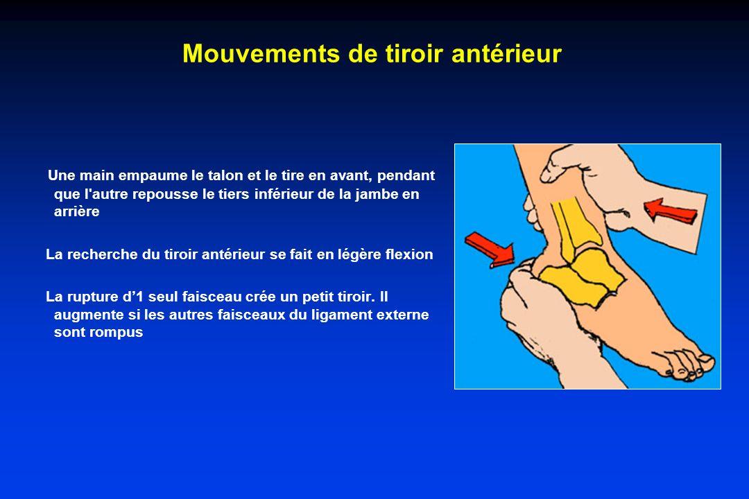 Mouvements de tiroir antérieur Une main empaume le talon et le tire en avant, pendant que l autre repousse le tiers inférieur de la jambe en arrière La recherche du tiroir antérieur se fait en légère flexion La rupture d1 seul faisceau crée un petit tiroir.