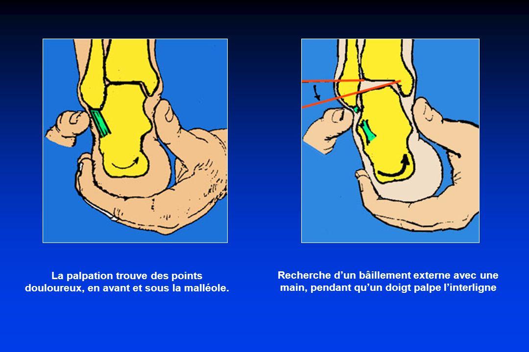 La palpation trouve des points douloureux, en avant et sous la malléole. Recherche dun bâillement externe avec une main, pendant quun doigt palpe lint