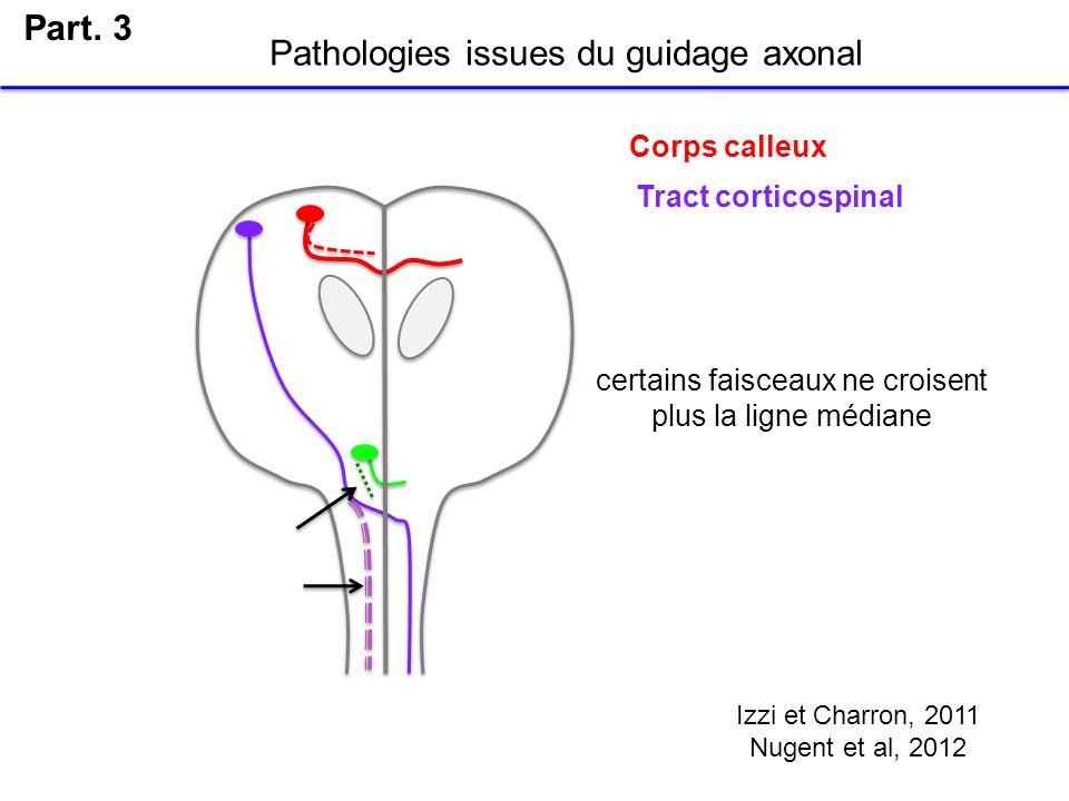 Part. 3 Pathologies issues du guidage axonal Izzi et Charron, 2011 Nugent et al, 2012 certains faisceaux ne croisent plus la ligne médiane Corps calle