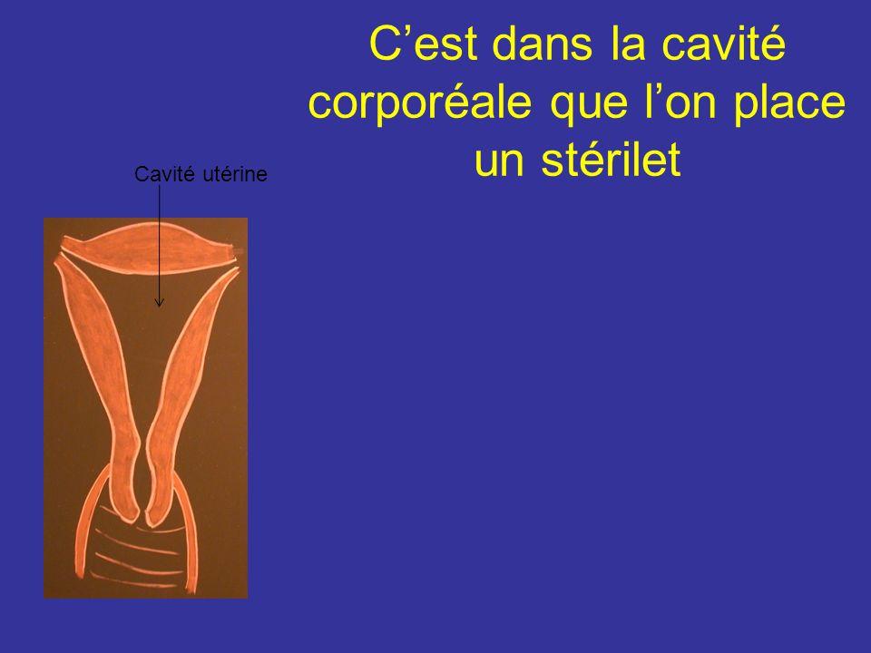 Configuration interne La cavité utérine comprend : la cavité corporéale et le canal cervical 1Cavité corporéale : triangulaire et virtuelle. Ses angle