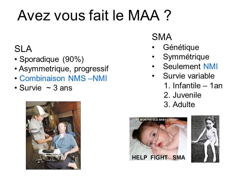 Avez vous fait le MAA ? SLA Sporadique (90%) Asymmetrique, progressif Combinaison NMS –NMI Survie ~ 3 ans SMA Génétique Symmétrique Seulement NMI Surv