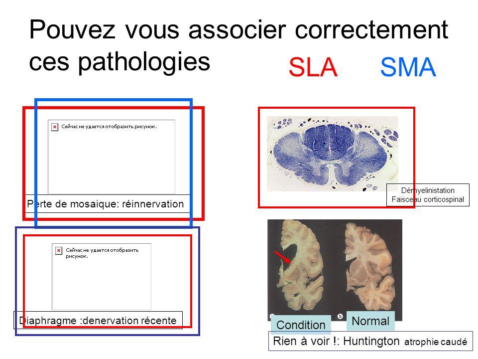 Pouvez vous associer correctement ces pathologies SMASLA Perte de mosaique: réinnervation Diaphragme :denervation récente Normal Condition Rien à voir !: Huntington atrophie caudé Démyelinistation Faisceau corticospinal