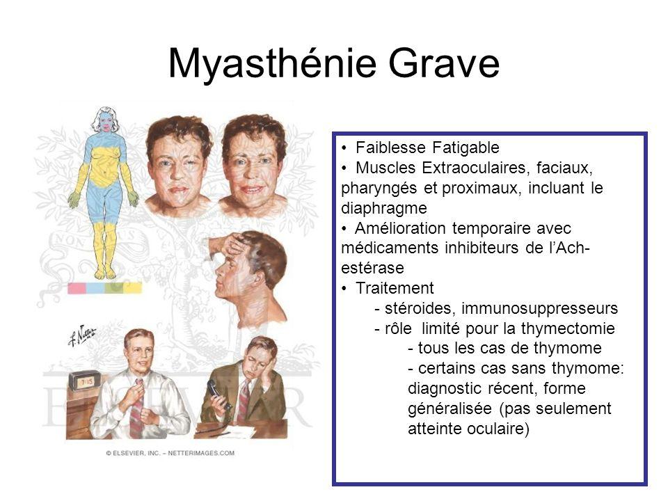 Myasthénie Grave Faiblesse Fatigable Muscles Extraoculaires, faciaux, pharyngés et proximaux, incluant le diaphragme Amélioration temporaire avec médicaments inhibiteurs de lAch- estérase Traitement - stéroides, immunosuppresseurs - rôle limité pour la thymectomie - tous les cas de thymome - certains cas sans thymome: diagnostic récent, forme généralisée (pas seulement atteinte oculaire)