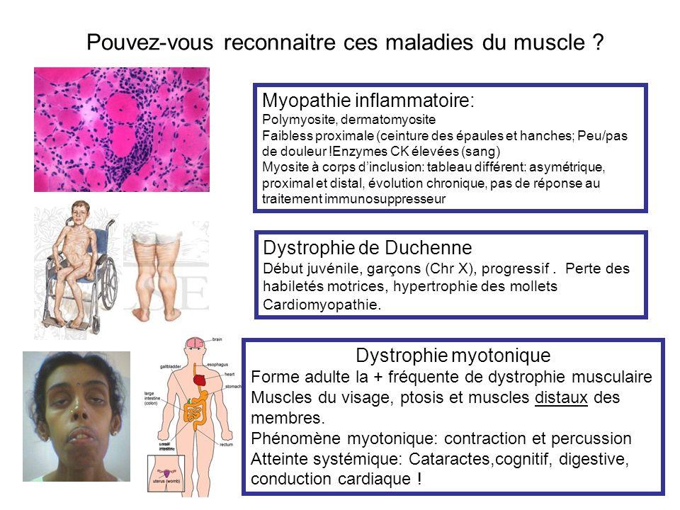 Pouvez-vous reconnaitre ces maladies du muscle ? Myopathie inflammatoire: Polymyosite, dermatomyosite Faibless proximale (ceinture des épaules et hanc