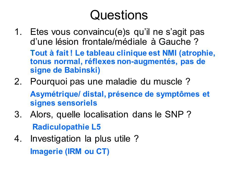 Questions 1.Etes vous convaincu(e)s quil ne sagit pas dune lésion frontale/médiale à Gauche ? Tout à fait ! Le tableau clinique est NMI (atrophie, ton