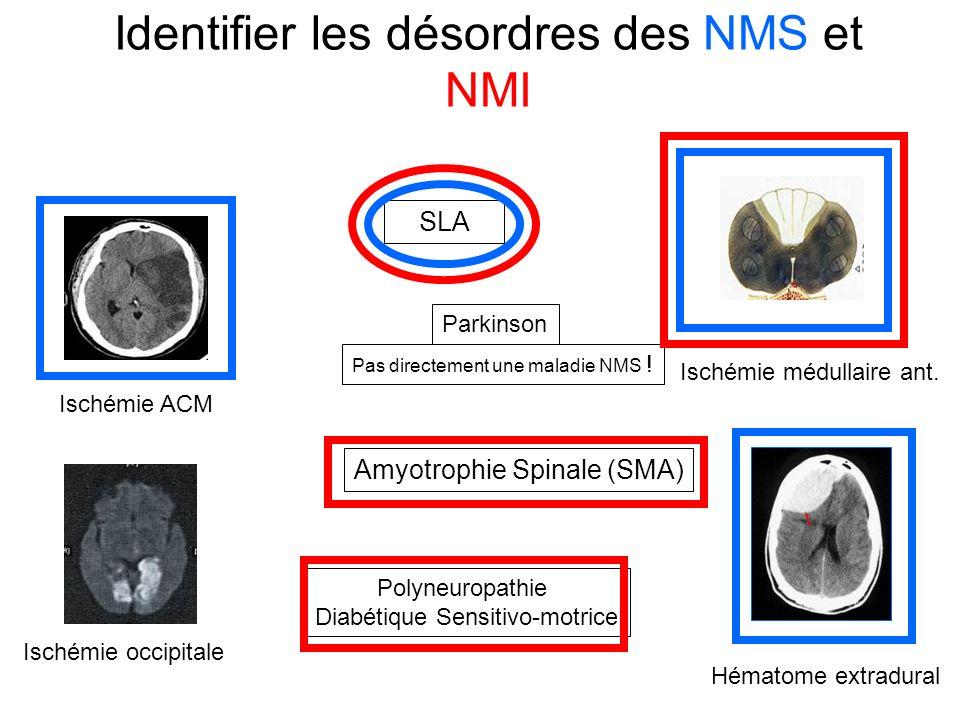 Identifier les désordres des NMS et NMI SLA Amyotrophie Spinale (SMA) Parkinson Polyneuropathie Diabétique Sensitivo-motrice Ischémie ACM Ischémie occipitale Hématome extradural Pas directement une maladie NMS .