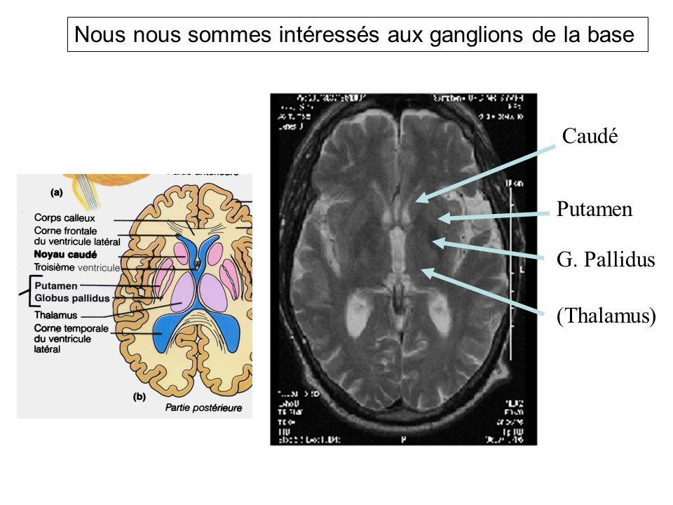 Caudé Putamen G. Pallidus (Thalamus) Nous nous sommes intéressés aux ganglions de la base