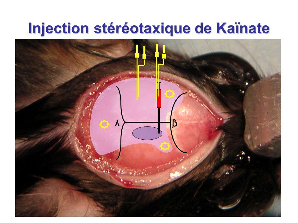 Injection stéréotaxique de Kaïnate λβ