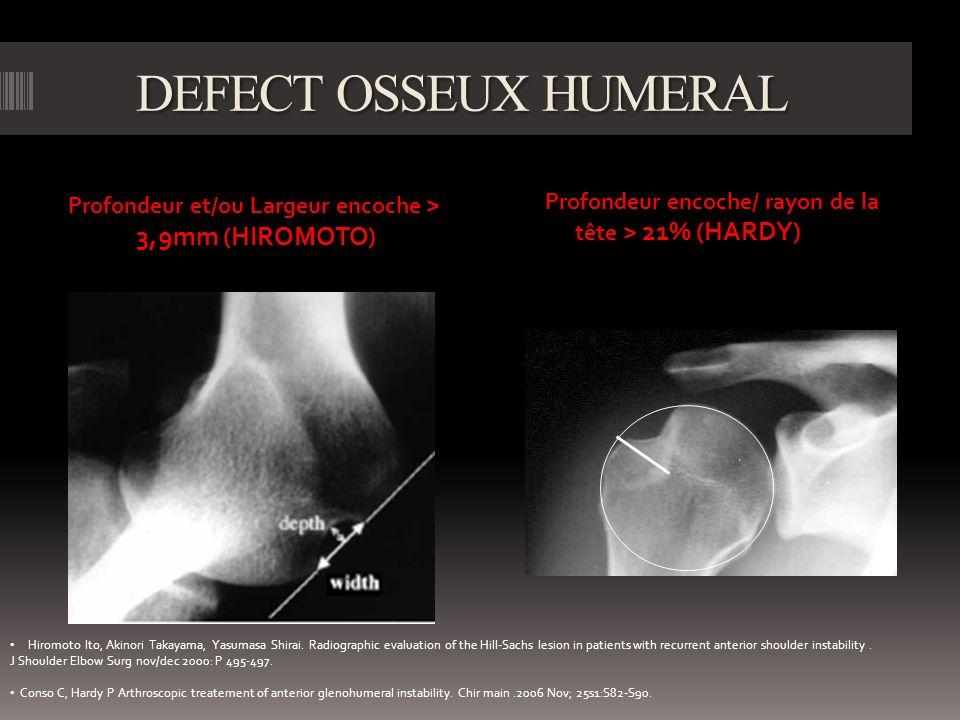 DEFECT OSSEUX HUMERAL Profondeur et/ou Largeur encoche > 3,9mm (HIROMOTO) Profondeur encoche/ rayon de la tête > 21% (HARDY) Hiromoto Ito, Akinori Takayama, Yasumasa Shirai.