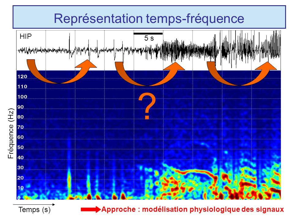 Représentation temps-fréquence HIP Fréquence (Hz) 5 s Temps (s) .