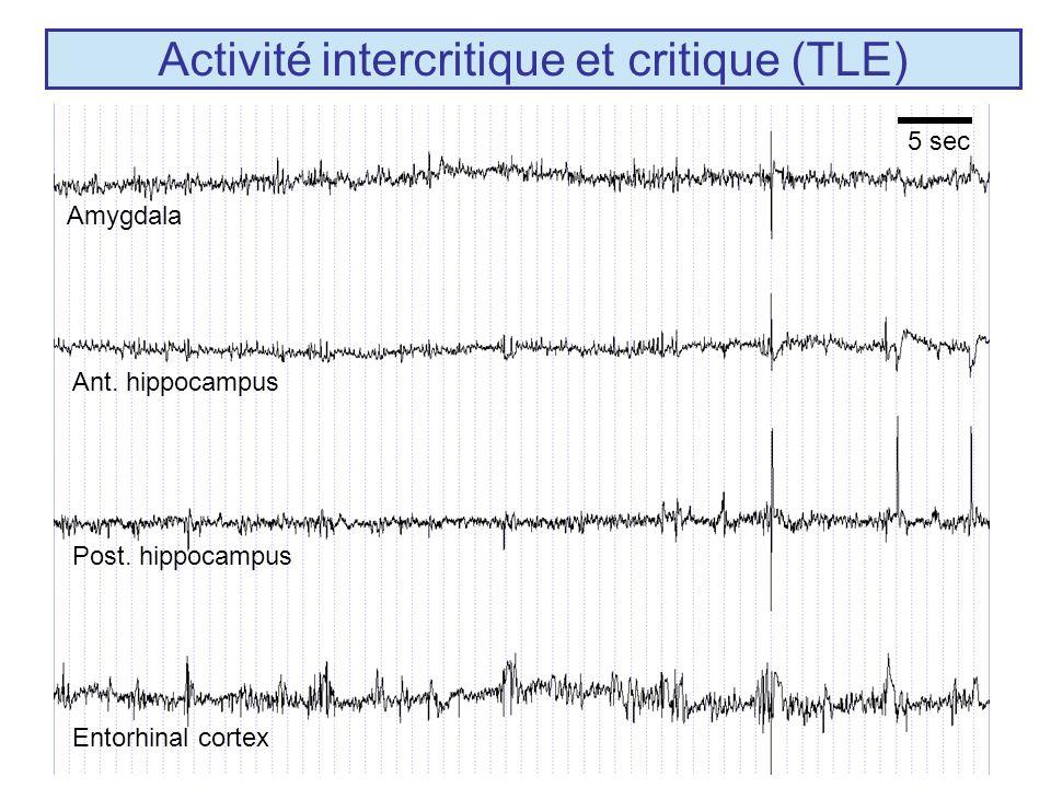 - Confirmation de certains résultats expérimentaux (perte des interneurones dendritiques, rôle des interneurones inhibiteurs somatiques) - Niveau macroscopique du modèle (population) nature des signaux EEG réels (macroélectrodes intracérébrales).