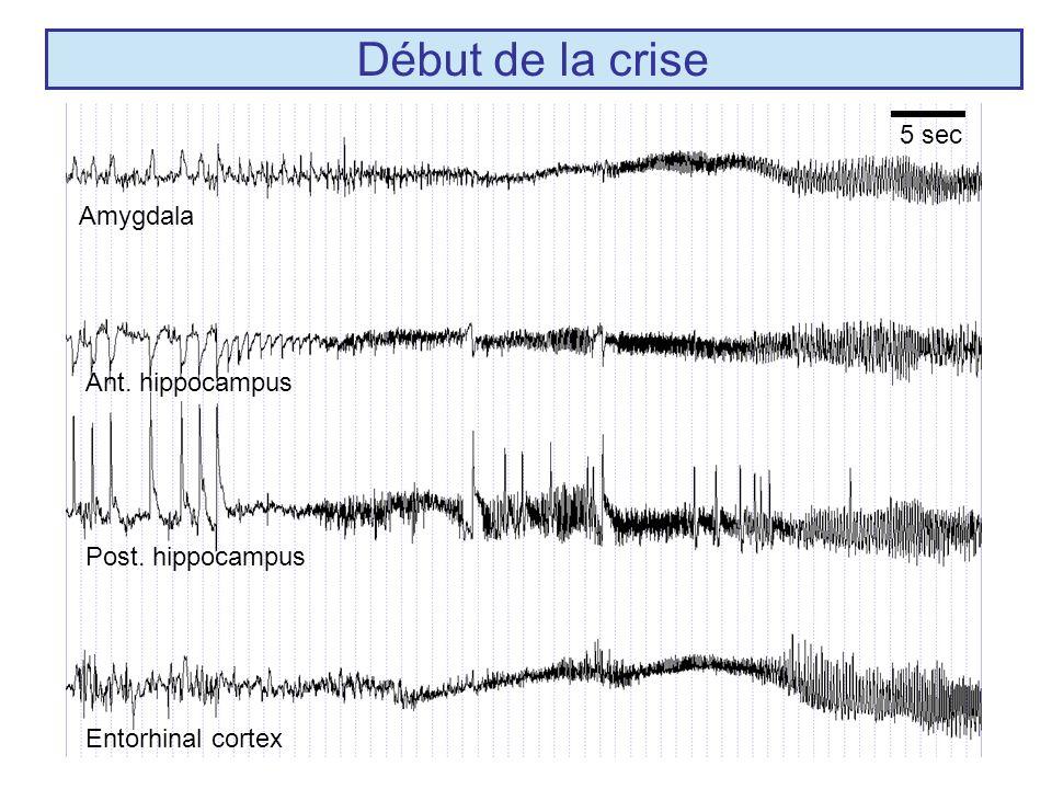 Amygdala Ant. hippocampus Post. hippocampus Entorhinal cortex Début de la crise 5 sec