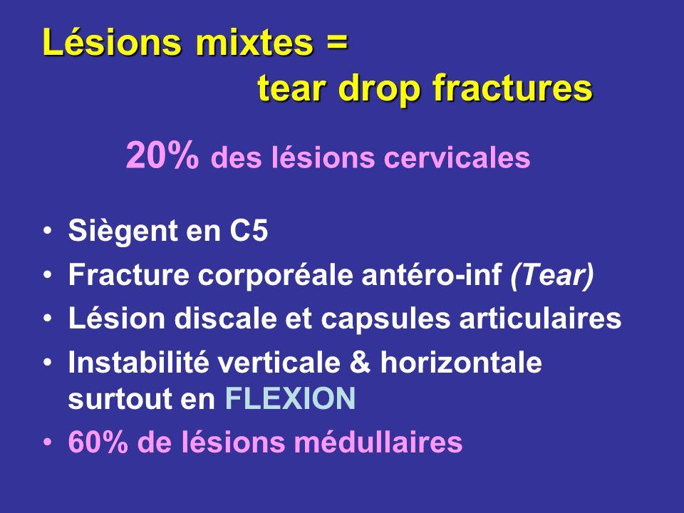 Lésions mixtes = tear drop fractures Siègent en C5 Fracture corporéale antéro-inf (Tear) Lésion discale et capsules articulaires Instabilité verticale