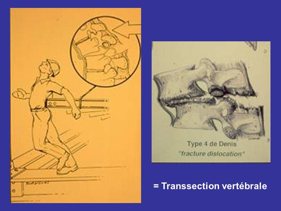 = Transsection vertébrale