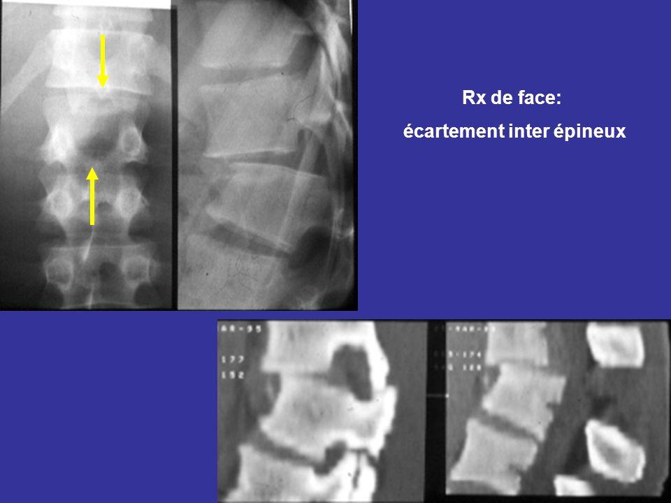 Rx de face: écartement inter épineux