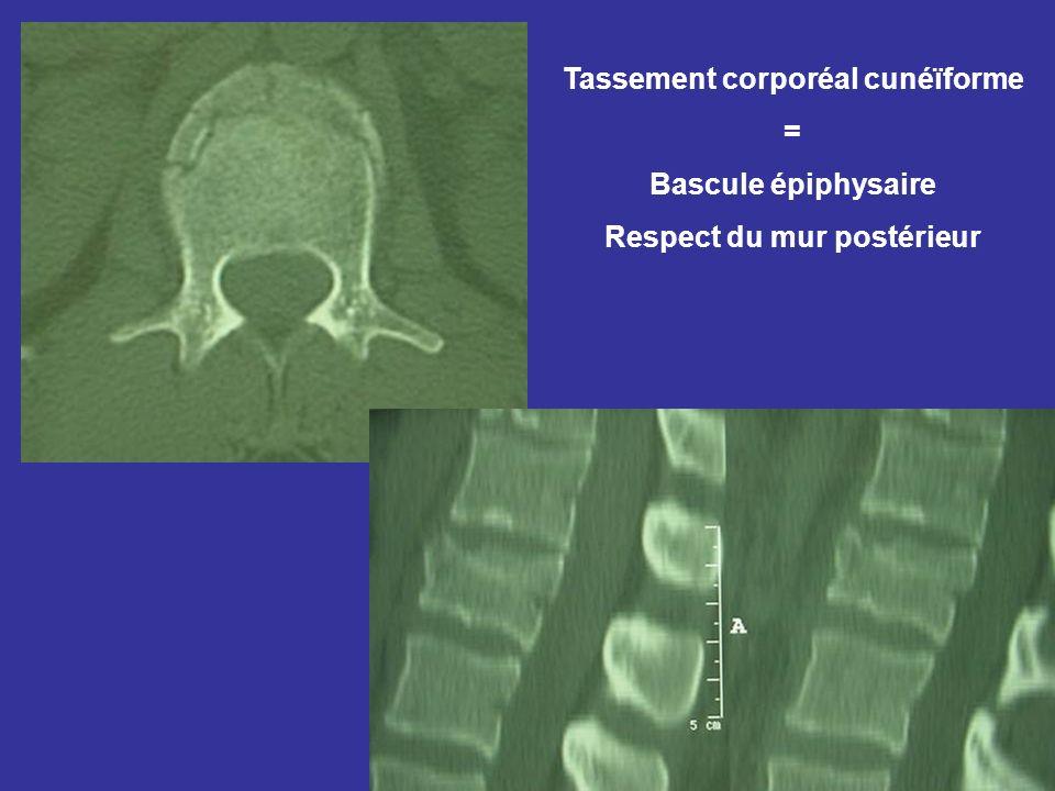 Tassement corporéal cunéïforme = Bascule épiphysaire Respect du mur postérieur