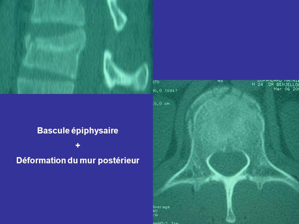 Bascule épiphysaire + Déformation du mur postérieur