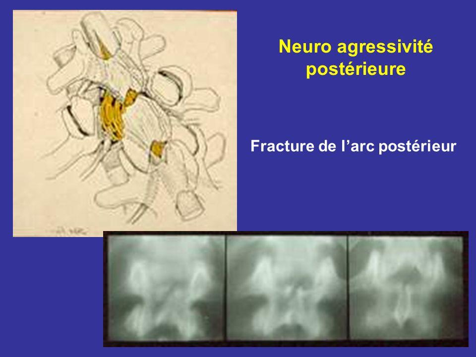 Neuro agressivité postérieure Fracture de larc postérieur