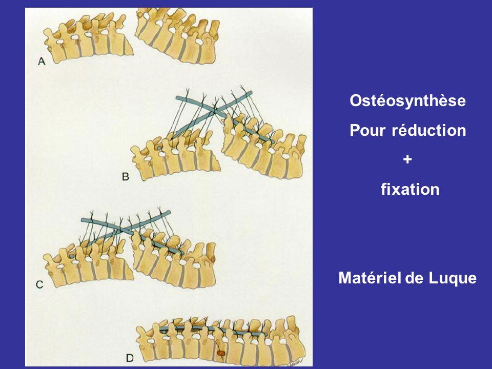 Ostéosynthèse Pour réduction + fixation Matériel de Luque