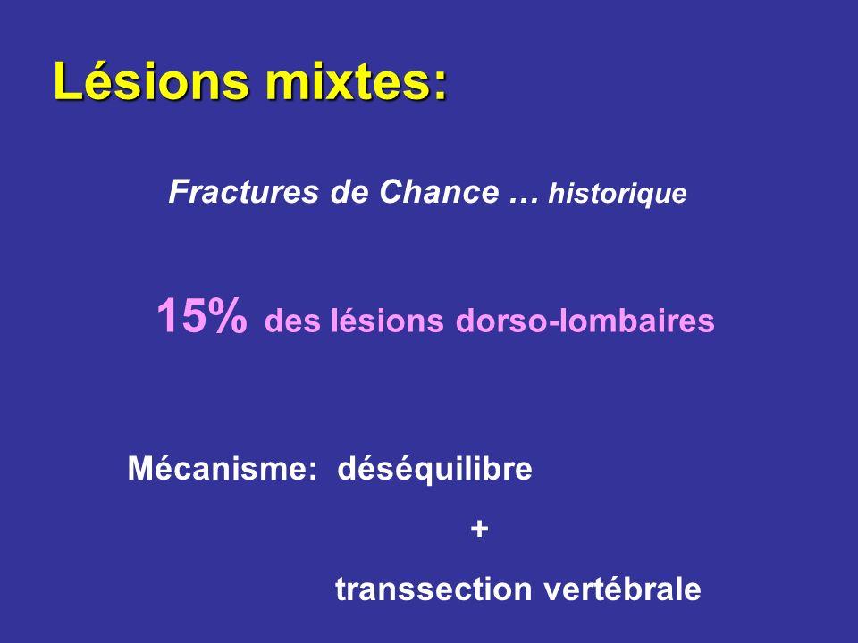 Lésions mixtes: Fractures de Chance … historique 15% des lésions dorso-lombaires Mécanisme: déséquilibre + transsection vertébrale