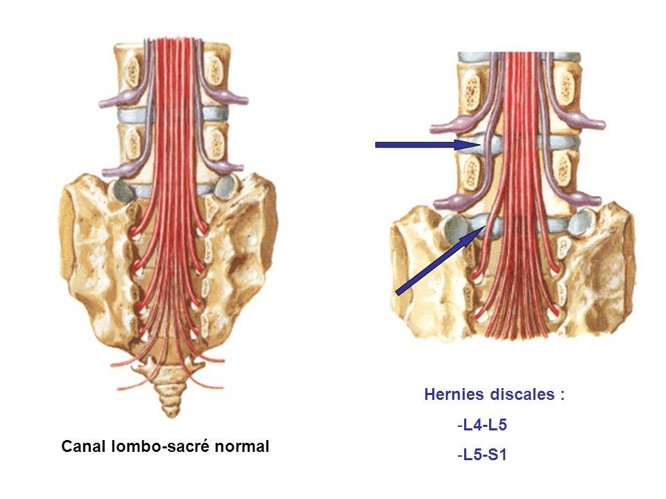 Canal lombo-sacré normal Hernies discales : -L4-L5 -L5-S1