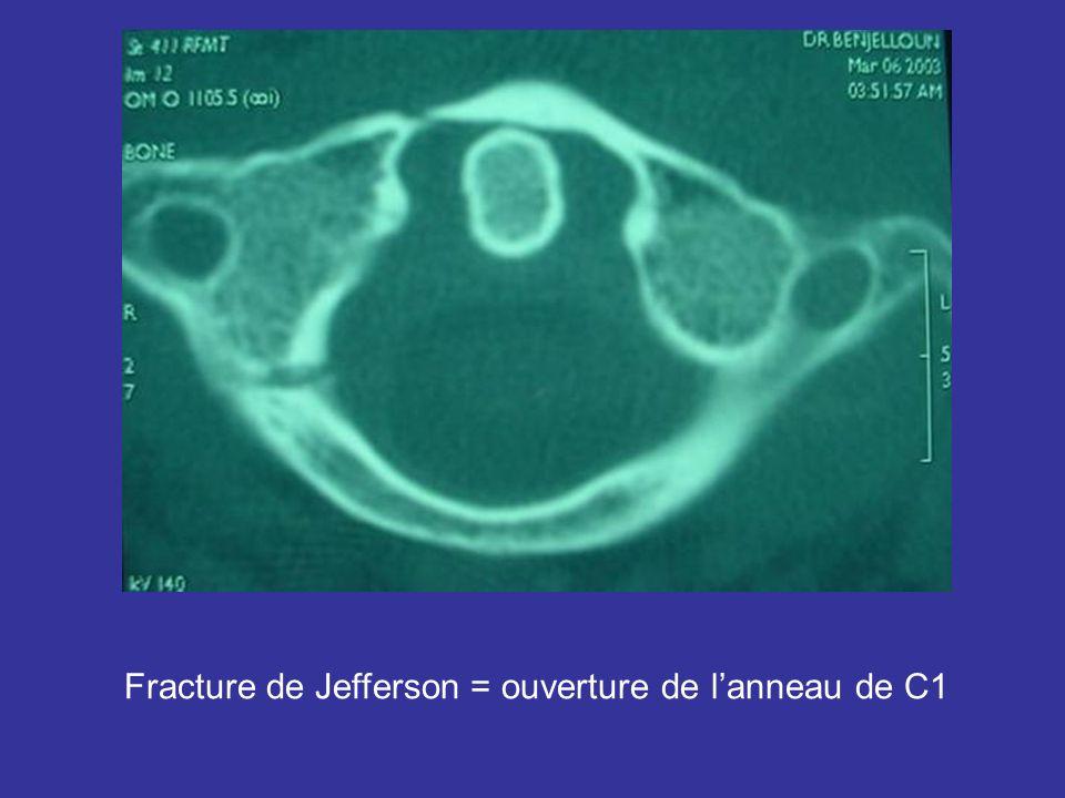 Fracture de Jefferson = ouverture de lanneau de C1
