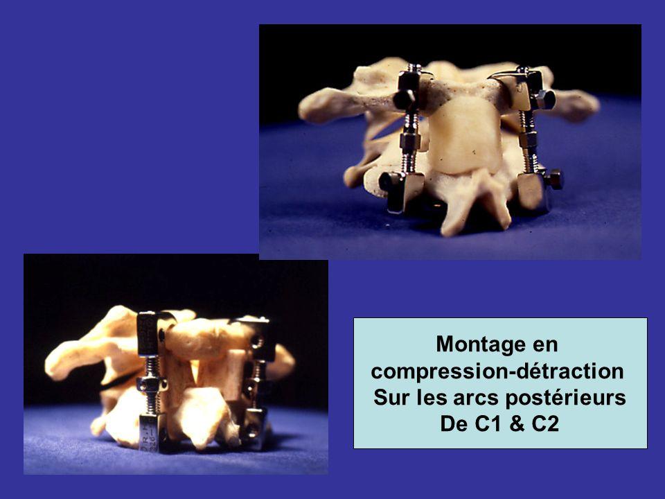 Montage en compression-détraction Sur les arcs postérieurs De C1 & C2