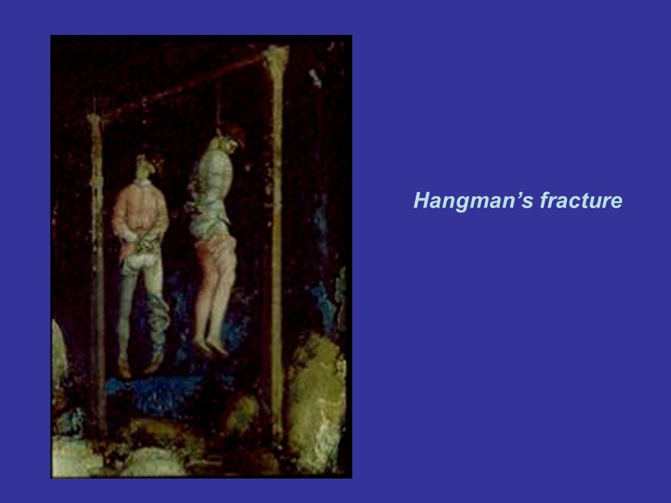 Hangmans fracture