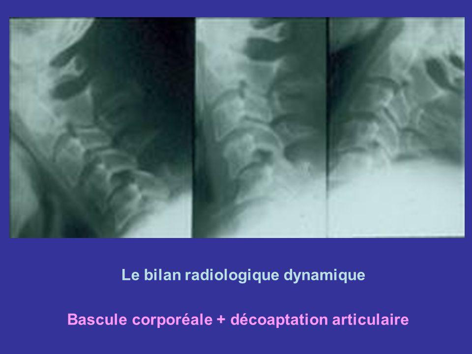 Le bilan radiologique dynamique Bascule corporéale + décoaptation articulaire