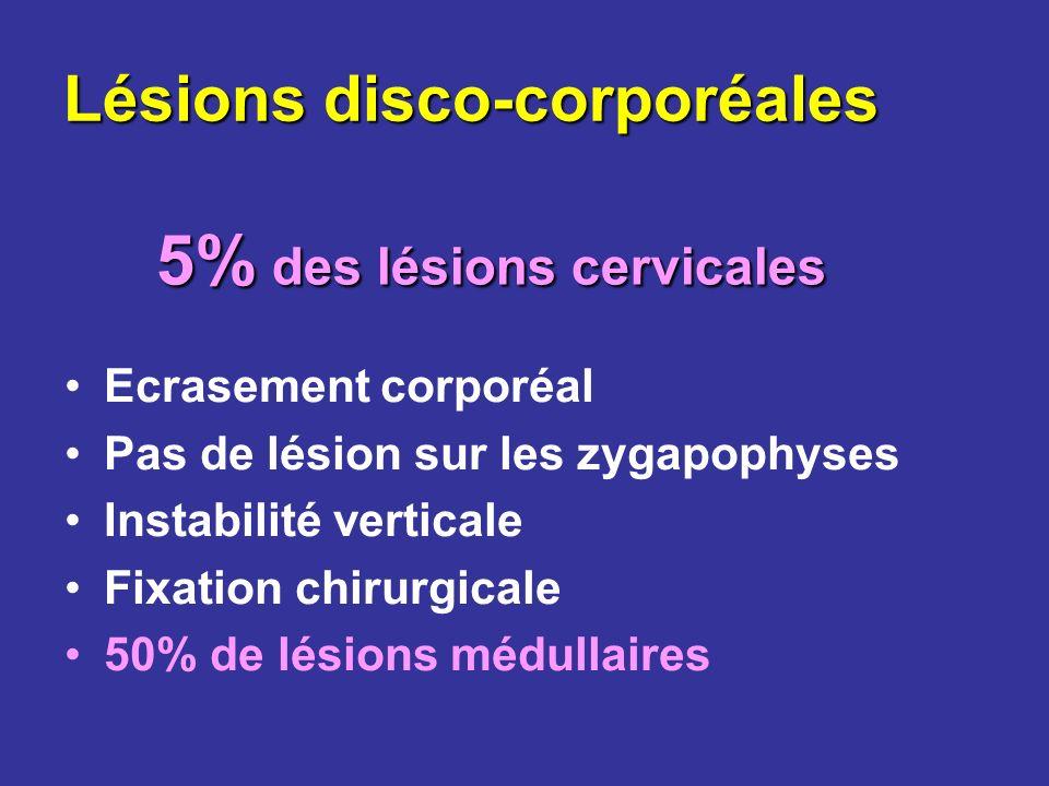 Lésions disco-corporéales Ecrasement corporéal Pas de lésion sur les zygapophyses Instabilité verticale Fixation chirurgicale 50% de lésions médullair