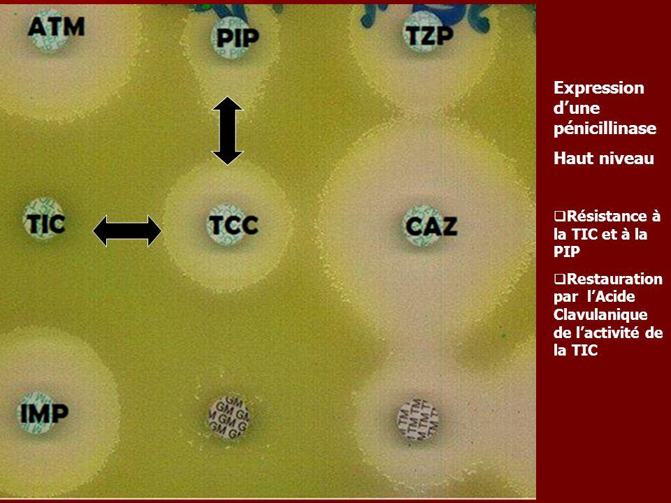 Expression dune pénicillinase Haut niveau Résistance à la TIC et à la PIP Restauration par lAcide Clavulanique de lactivité de la TIC Pseudomonas aeru