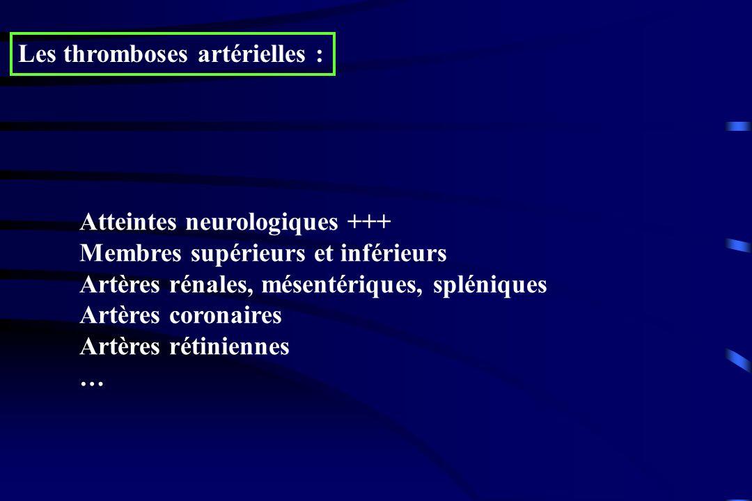 Les thromboses artérielles : Atteintes neurologiques +++ Membres supérieurs et inférieurs Artères rénales, mésentériques, spléniques Artères coronaire