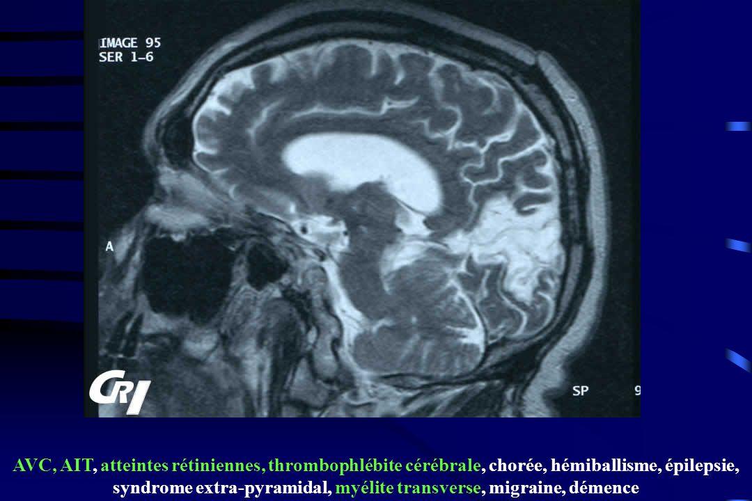 AVC, AIT, atteintes rétiniennes, thrombophlébite cérébrale, chorée, hémiballisme, épilepsie, syndrome extra-pyramidal, myélite transverse, migraine, d