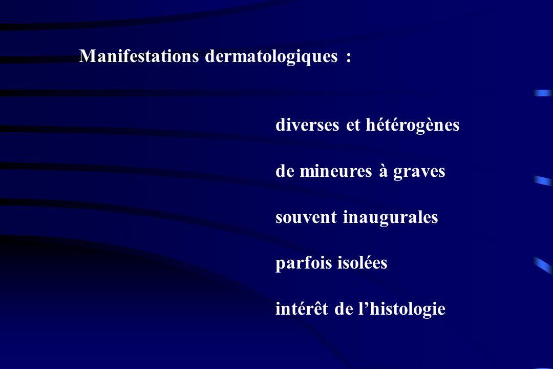 Manifestations dermatologiques : diverses et hétérogènes de mineures à graves souvent inaugurales parfois isolées intérêt de lhistologie