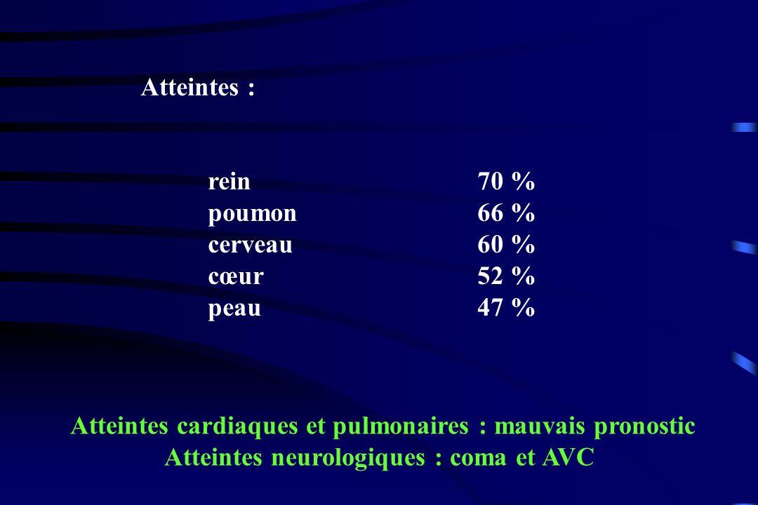 Atteintes : rein70 % poumon66 % cerveau 60 % cœur52 % peau 47 % Atteintes cardiaques et pulmonaires : mauvais pronostic Atteintes neurologiques : coma