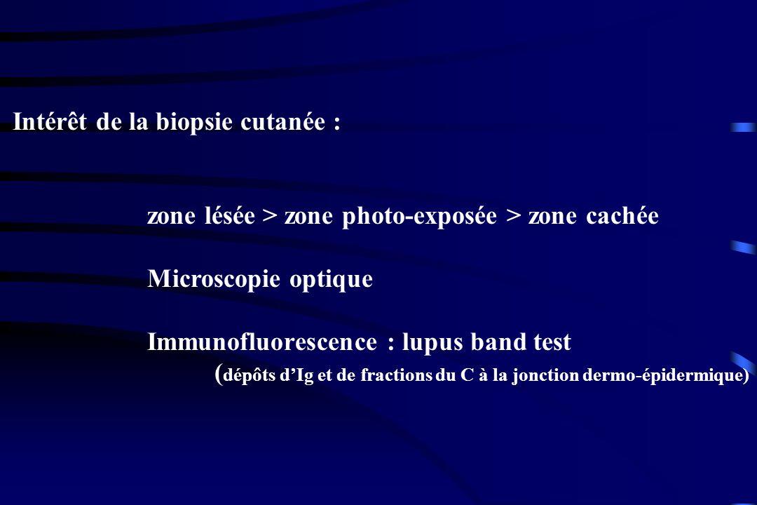 Intérêt de la biopsie cutanée : zone lésée > zone photo-exposée > zone cachée Microscopie optique Immunofluorescence : lupus band test ( dépôts dIg et