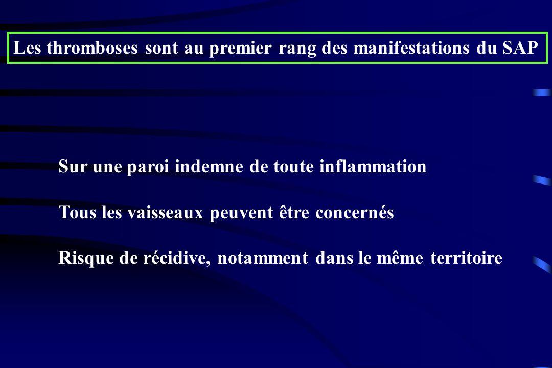 Les thromboses sont au premier rang des manifestations du SAP Sur une paroi indemne de toute inflammation Tous les vaisseaux peuvent être concernés Ri