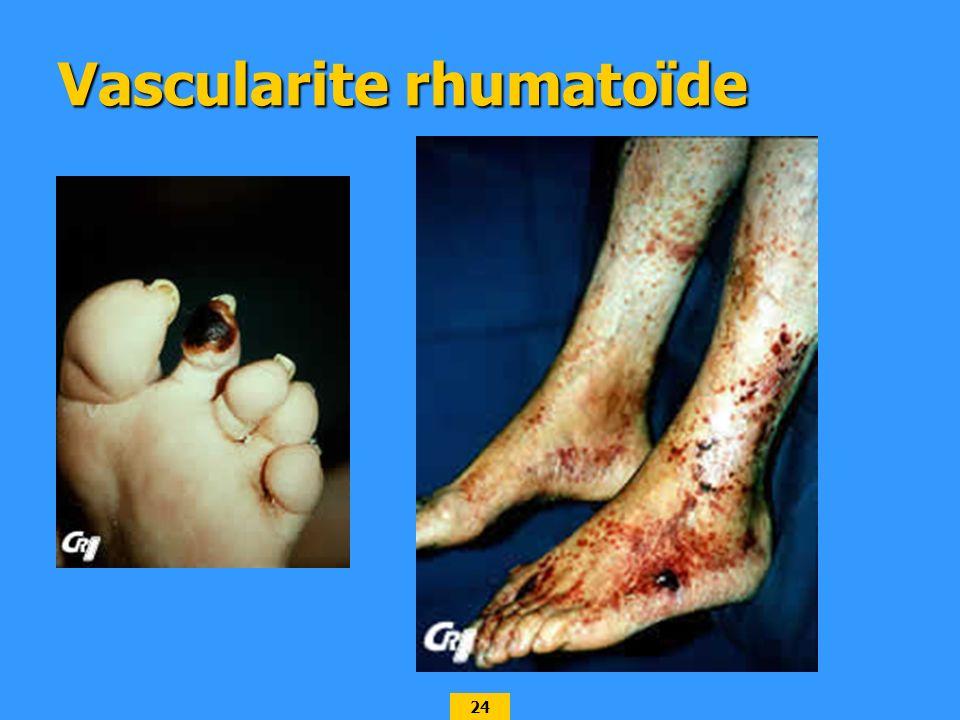 24 Vascularite rhumatoïde