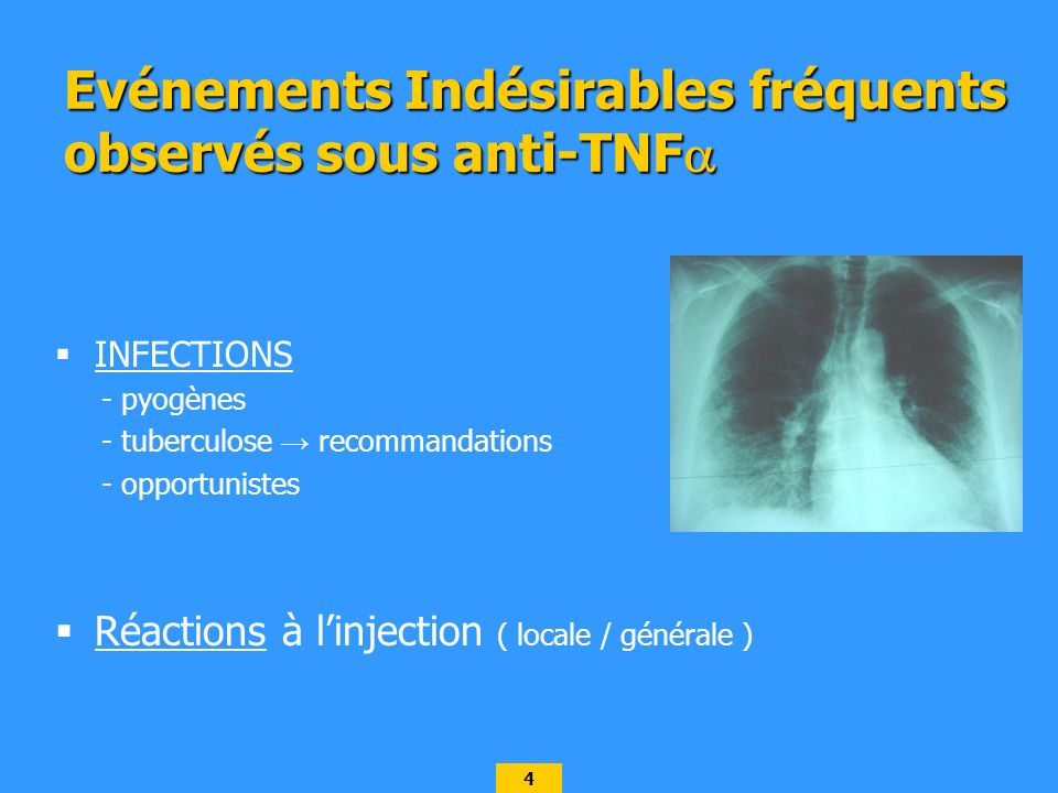 4 INFECTIONS - pyogènes - tuberculose recommandations - opportunistes Réactions à linjection ( locale / générale ) Evénements Indésirables fréquents observés sous anti-TNF Evénements Indésirables fréquents observés sous anti-TNF