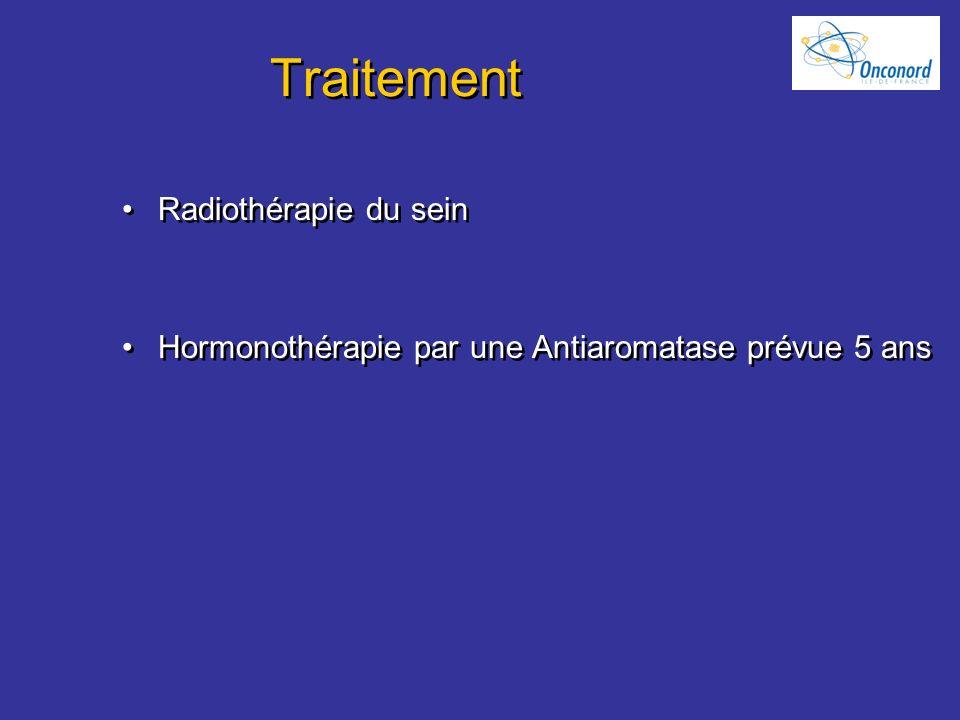 Traitement Radiothérapie du sein Hormonothérapie par une Antiaromatase prévue 5 ans Radiothérapie du sein Hormonothérapie par une Antiaromatase prévue