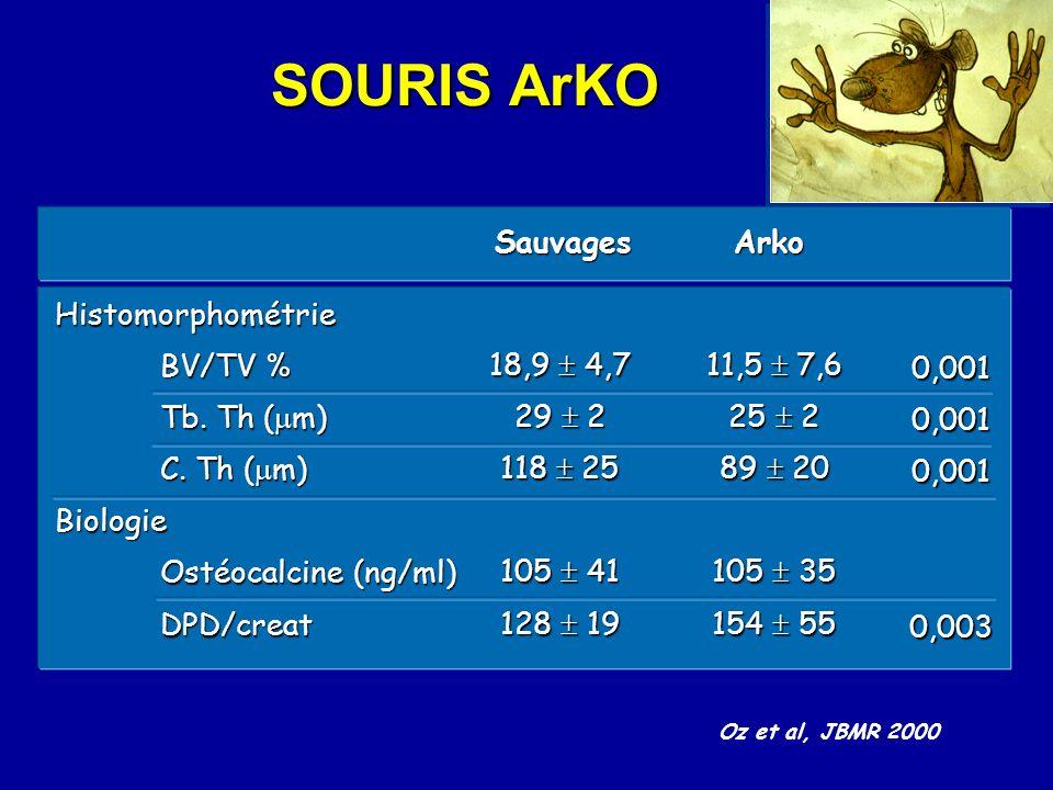 Oz et al, JBMR 2000 Histomorphométrie BV/TV % Tb. Th ( m) C. Th ( m) Biologie Ostéocalcine (ng/ml) DPD/creat SauvagesArko 0,0010,0010,0010,003 18,9 4,