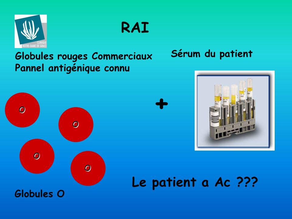 RAI O Globules rouges Commerciaux Pannel antigénique connu + Sérum du patient Le patient a Ac ??? O O O Globules O