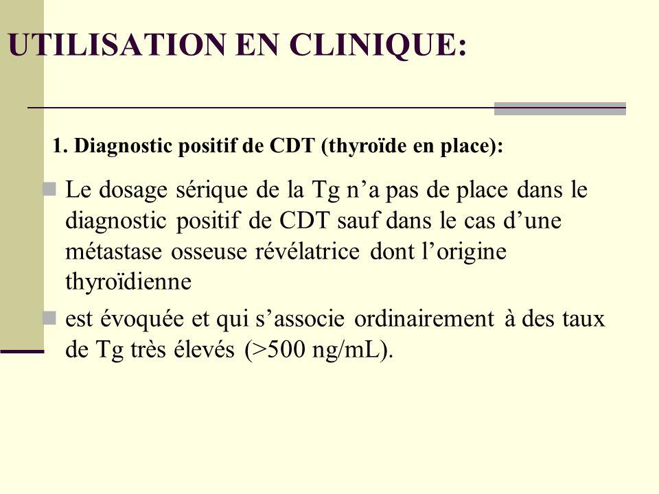 UTILISATION EN CLINIQUE: Le dosage sérique de la Tg na pas de place dans le diagnostic positif de CDT sauf dans le cas dune métastase osseuse révélatrice dont lorigine thyroïdienne est évoquée et qui sassocie ordinairement à des taux de Tg très élevés (>500 ng/mL).