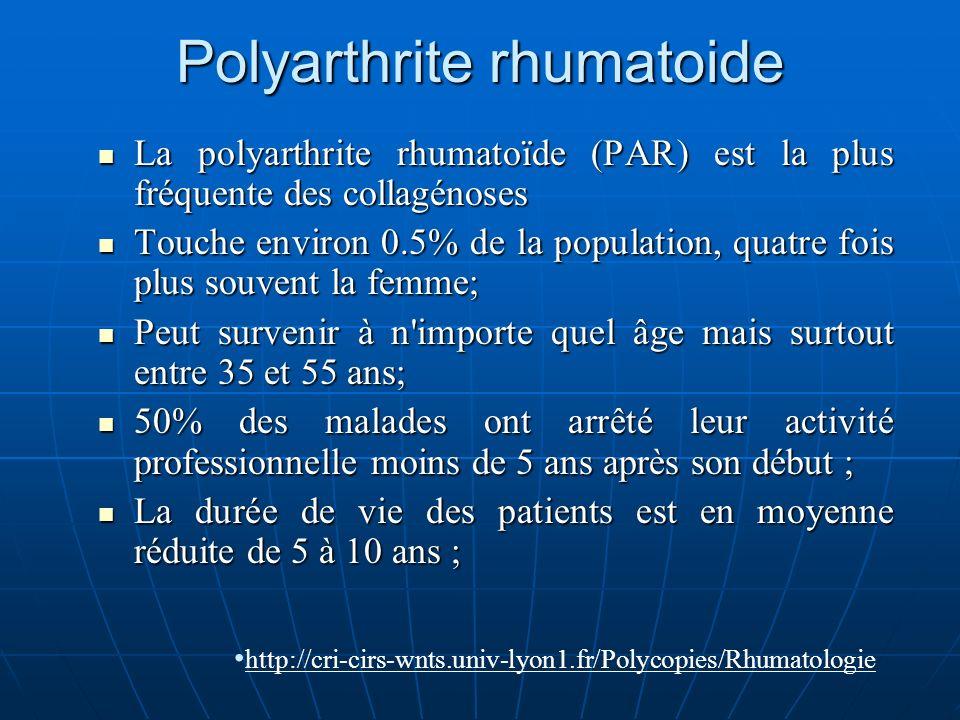 Polyarthrite rhumatoide La polyarthrite rhumatoïde (PAR) est la plus fréquente des collagénoses La polyarthrite rhumatoïde (PAR) est la plus fréquente