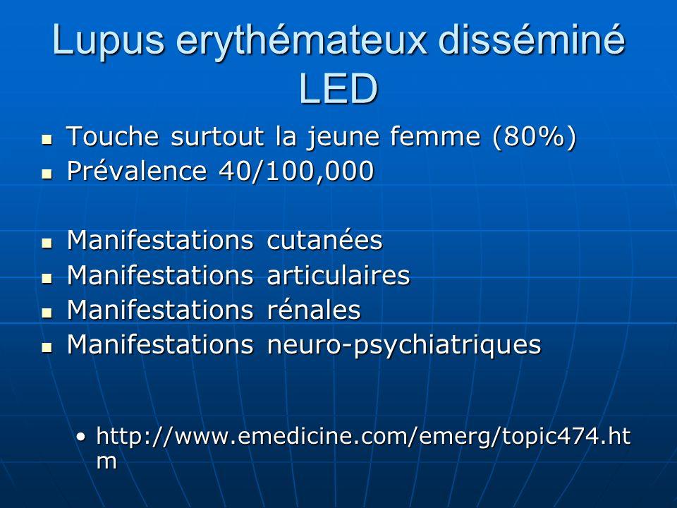 Lupus erythémateux disséminé LED Touche surtout la jeune femme (80%) Touche surtout la jeune femme (80%) Prévalence 40/100,000 Prévalence 40/100,000 M