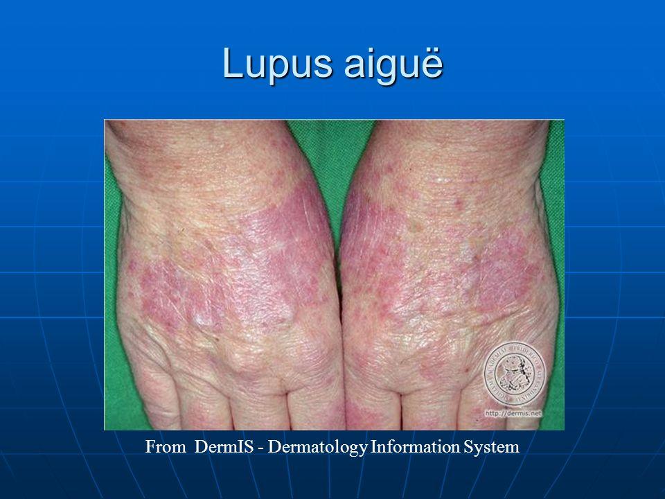 Lupus aiguë From DermIS - Dermatology Information System
