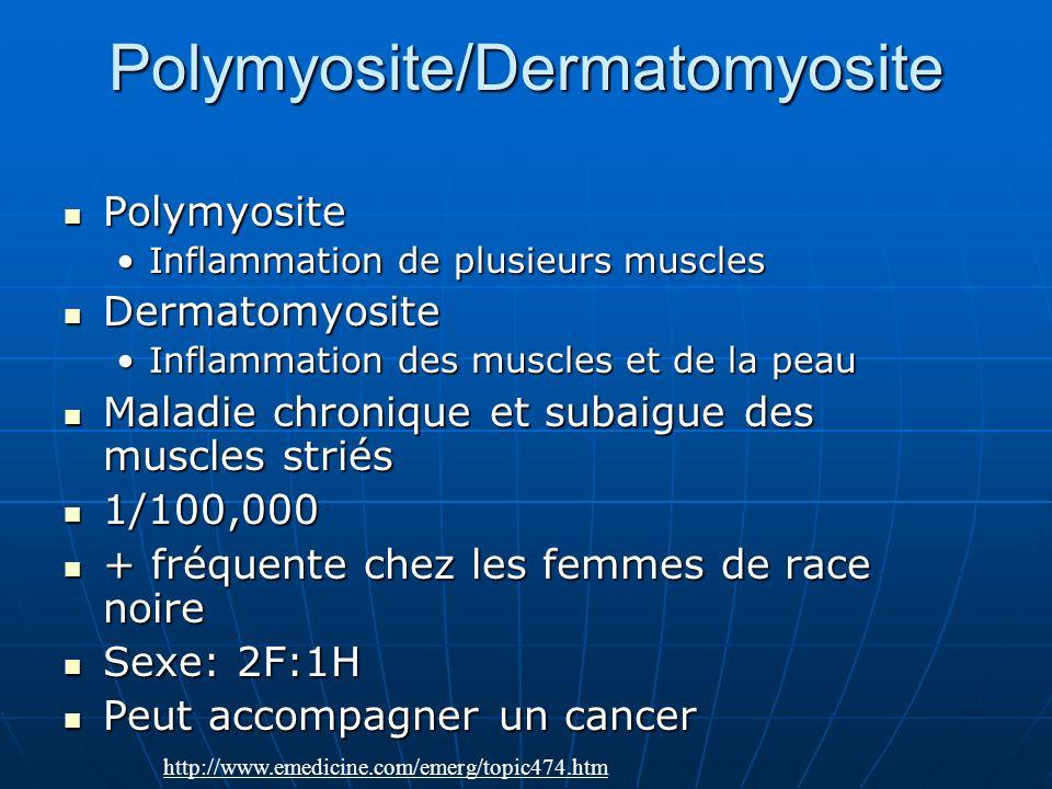 Polymyosite/Dermatomyosite Polymyosite Polymyosite Inflammation de plusieurs musclesInflammation de plusieurs muscles Dermatomyosite Dermatomyosite In